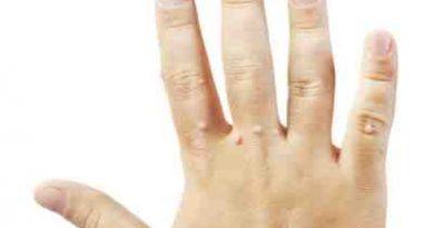 bradavice na rukama